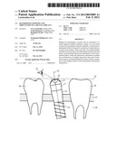 DETERMINING POSITION AND ORIENTATION OF A DENTAL IMPLANT diagram and image