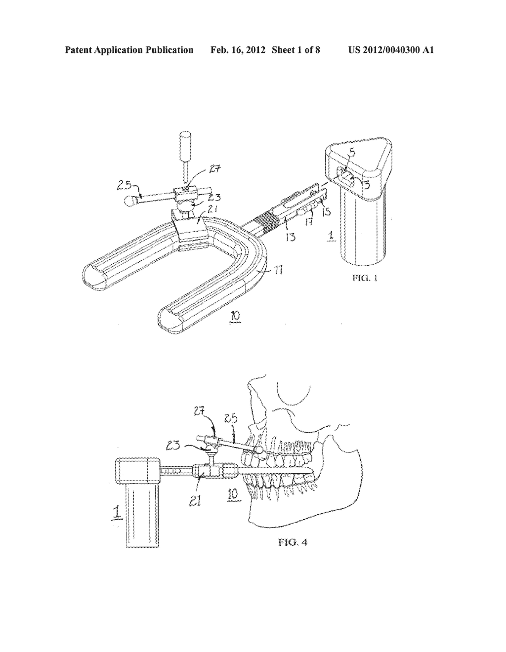 VIBRATING DENTAL PLATE AND ACCESSORIES - diagram, schematic, and image 02