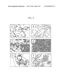 MONOCLONAL ANTIBODY DS6, TUMOR-ASSOCIATED ANTIGEN CA6, AND METHODS OF USE     THEREOF diagram and image