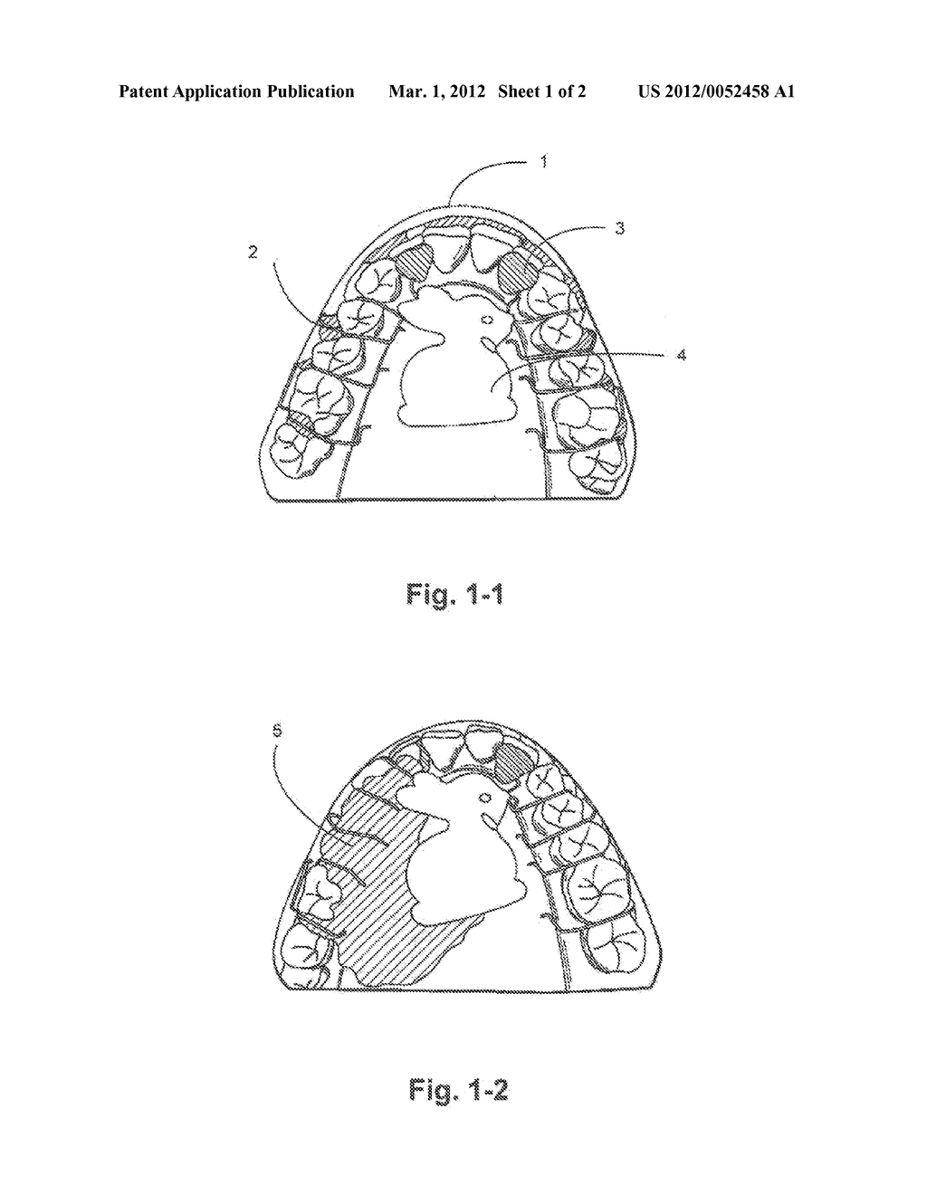 REMOVABLE ORTHODONTIC OR ORTHOPEDIC APPLIANCE WITH INLAID DESIGN PIECE AND  THE METHOD OF CONSTRUCTION - diagram, schematic, and image 02