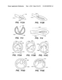 LOOP-TIP CATHETER diagram and image