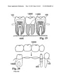 CUSTOMIZED DENTAL PROSTHESIS FOR PERIODONTAL OR OSSEOINTEGRATION AND     RELATED SYSTEMS diagram and image
