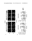 Biomarkers for the Diagnosis of Autoimmune Disease diagram and image