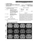Neuroprotective effects of 2DG in Traumatic Brain Injury diagram and image