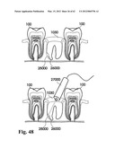Methods of Designing and Manufacturing Customized Dental Prosthesis for     Periodontal or Osseointegration and Related Systems diagram and image