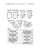 Dental implant fabrication and insertion methods and personalized dental     implant for use therein diagram and image