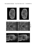 CORRECTION OF SATURATION BANDING ARTIFACTS IN MAGNETIC RESONANCE IMAGING diagram and image