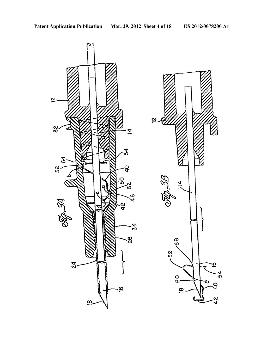 SPRING CLIP SAFETY IV CATHETER - diagram, schematic, and image 05