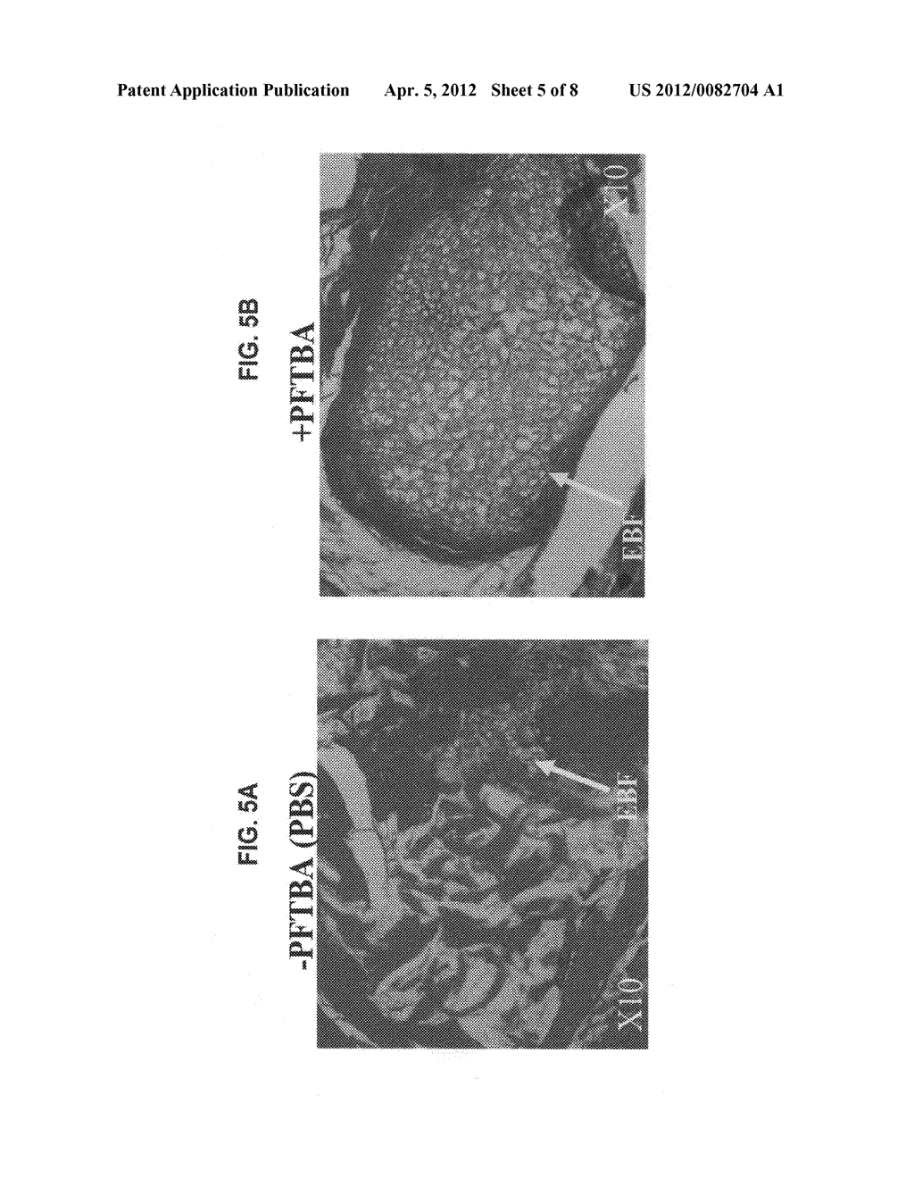Oxygenated demineralized bone matrix for use in bone growth - diagram, schematic, and image 06