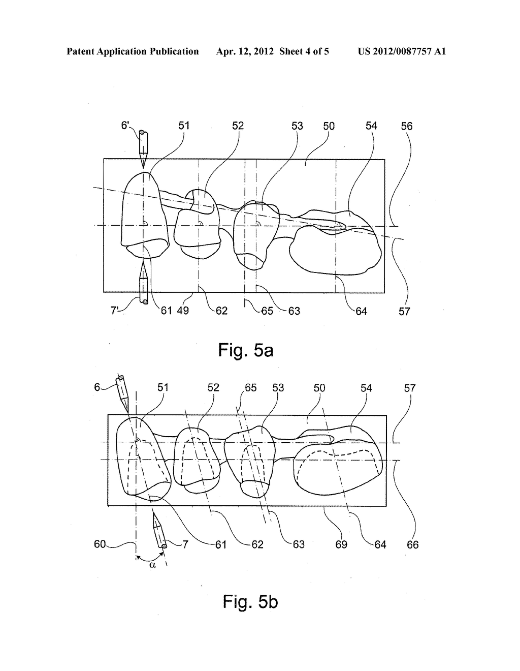 MACHINING DEVICE FOR A WORKPIECE, MORE PARTICULARLY FOR THE FABRICATION OF     DENTAL PROSTHETIC ITEMS OR MODELS THEREOF AND A METHOD THEREFOR - diagram, schematic, and image 05
