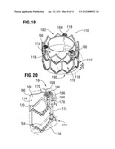 BAR-LESS COMMISSURE ATTACHMENT FOR PROSTHETIC VALVE diagram and image