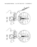 IMPLANTS, TOOLS, AND METHODS FOR SINUS LIFT AND LATERAL RIDGE AUGMENTATION diagram and image