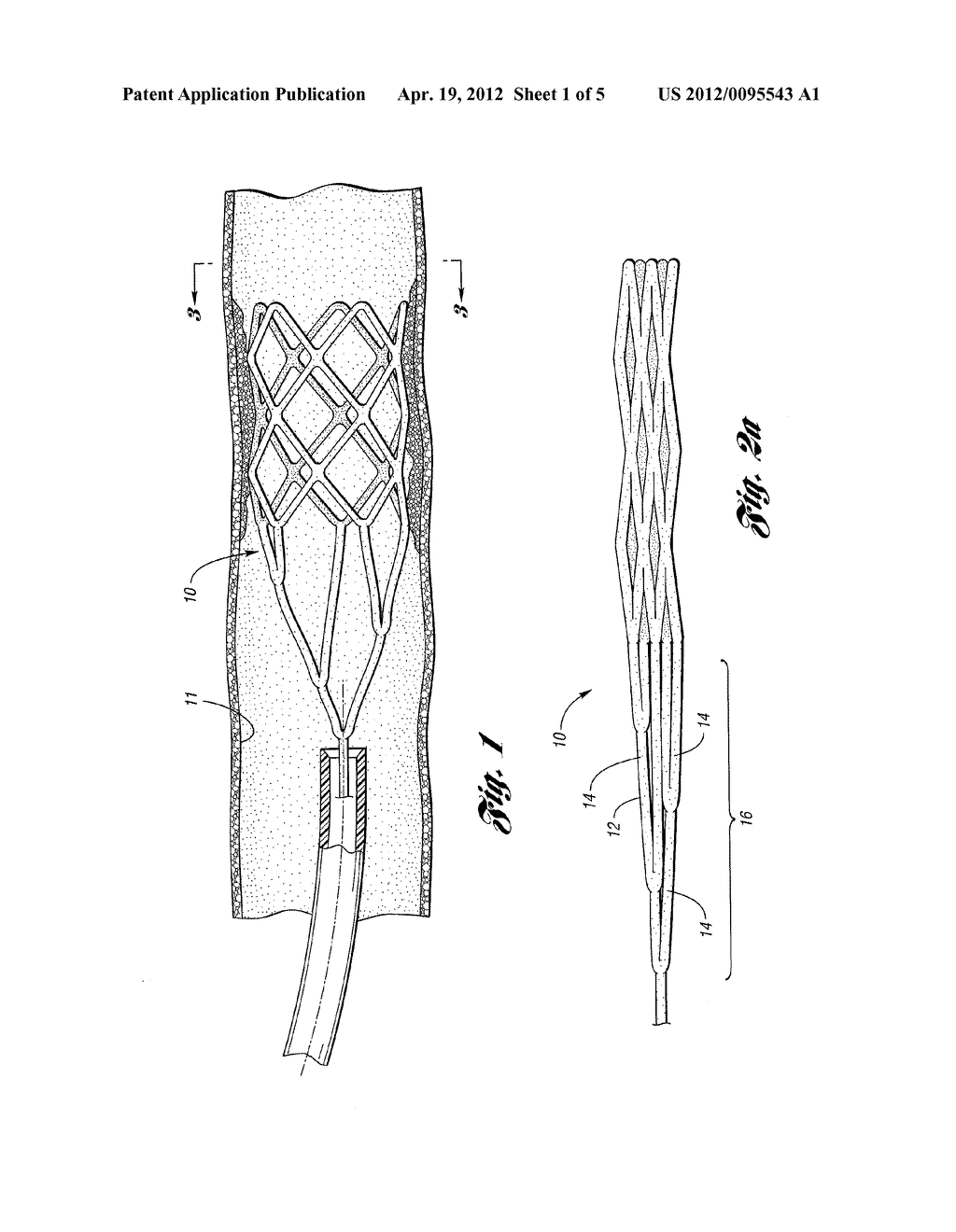 RETRIEVABLE DEVICE HAVING A RETICULATION PORTION WITH STAGGERED STRUTS - diagram, schematic, and image 02