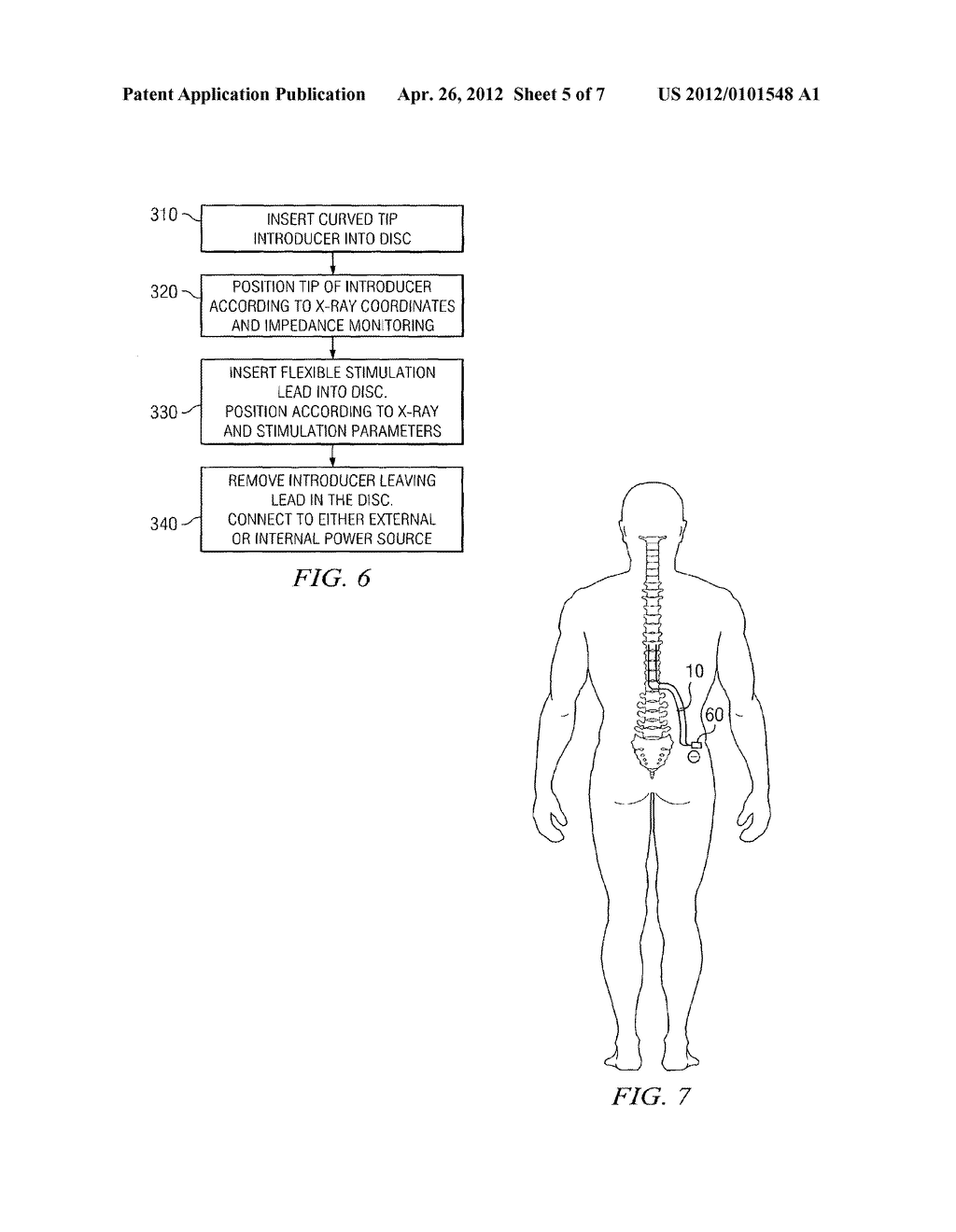 SYSTEM AND METHOD FOR ELECTRICAL STIMULATION OF THE INTERVERTEBRAL DISC - diagram, schematic, and image 06