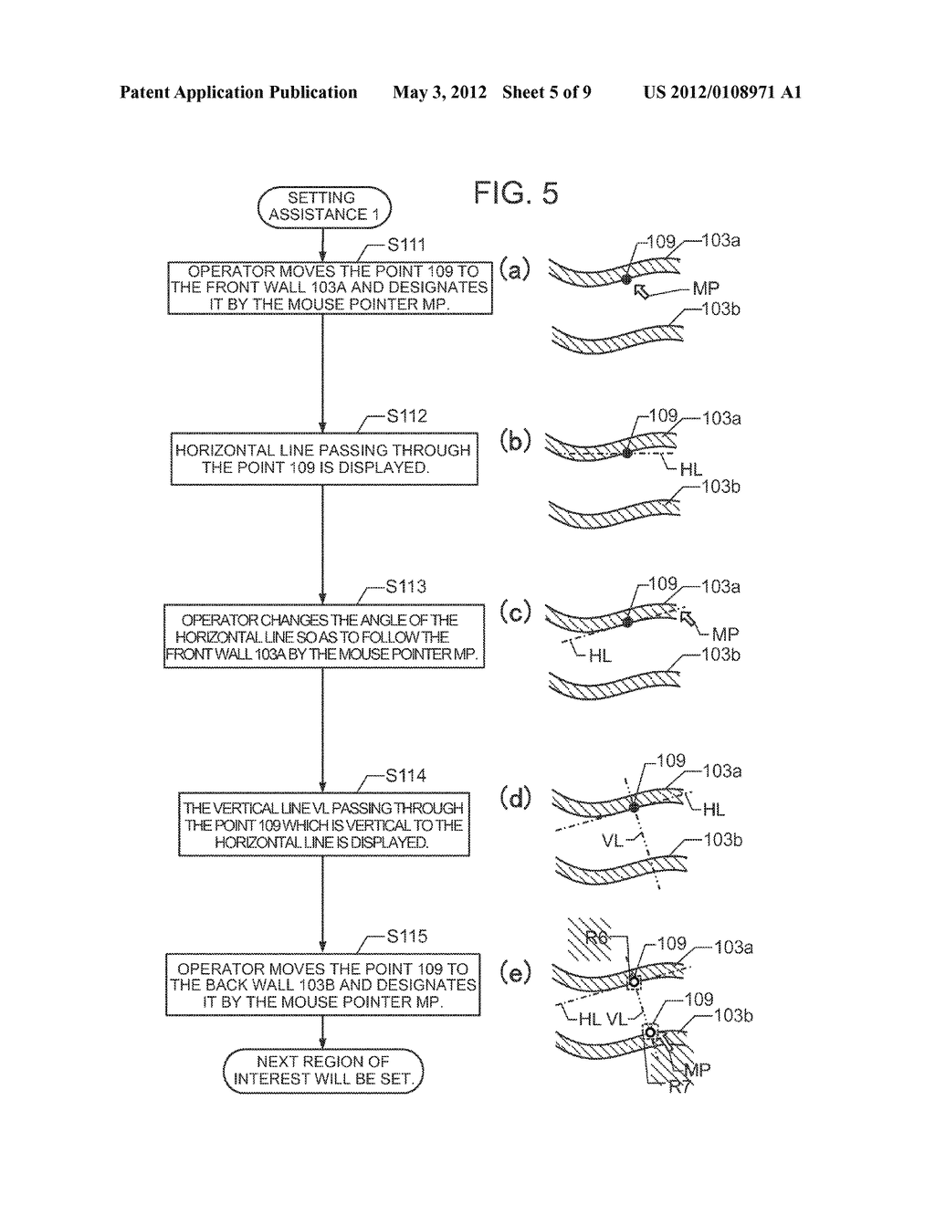 ULTRASOUND DIAGNOSTIC APPARATUS AND METHOD FOR TRACING MOVEMENT OF TISSUE - diagram, schematic, and image 06