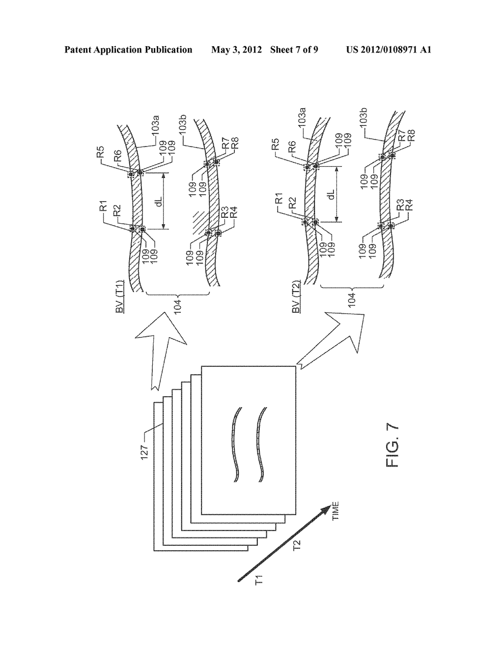 ULTRASOUND DIAGNOSTIC APPARATUS AND METHOD FOR TRACING MOVEMENT OF TISSUE - diagram, schematic, and image 08