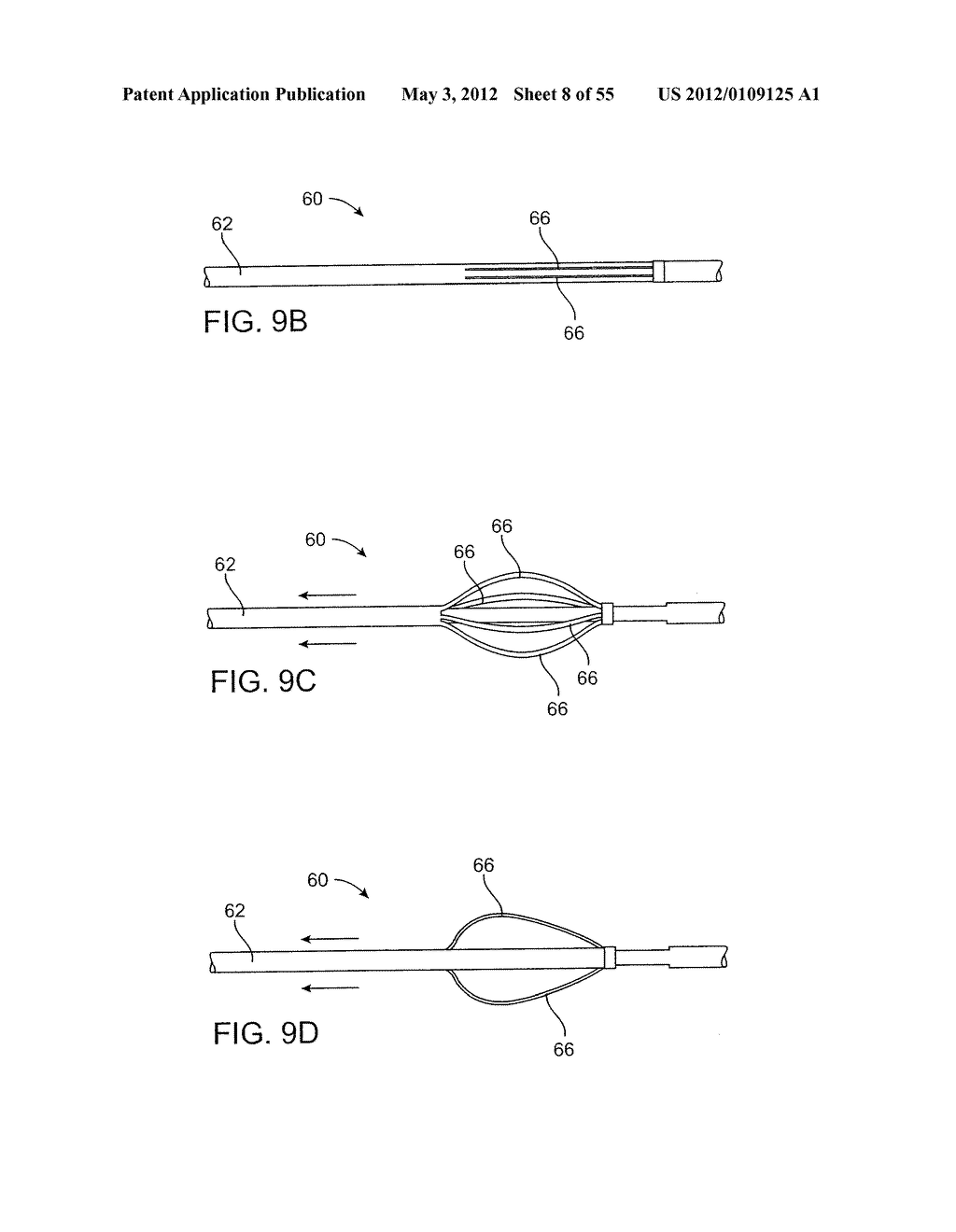 METHODS AND ELECTRODE APPARATUS TO ACHIEVE A CLOSURE OF A LAYERED TISSUE     DEFECT - diagram, schematic, and image 09