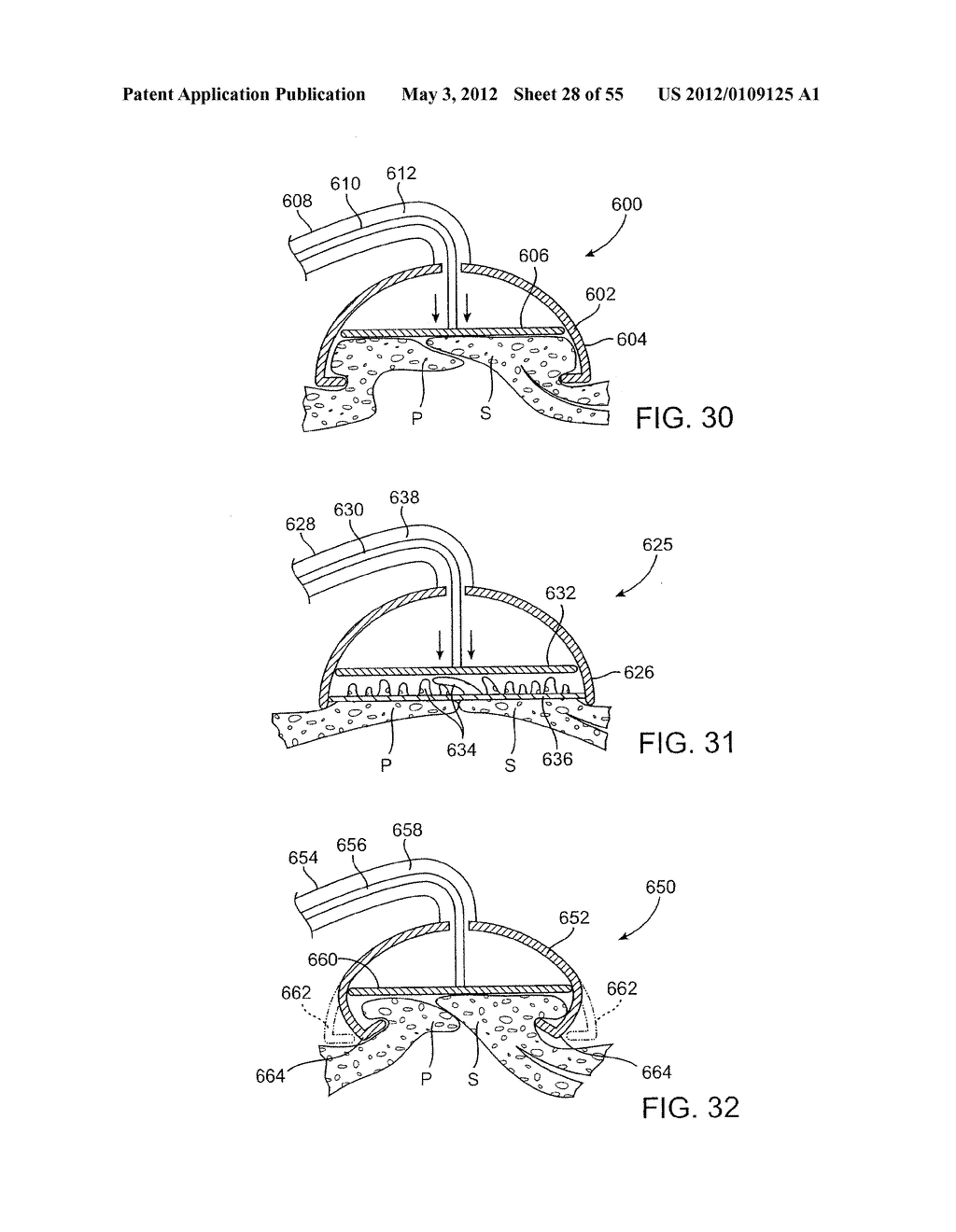 METHODS AND ELECTRODE APPARATUS TO ACHIEVE A CLOSURE OF A LAYERED TISSUE     DEFECT - diagram, schematic, and image 29