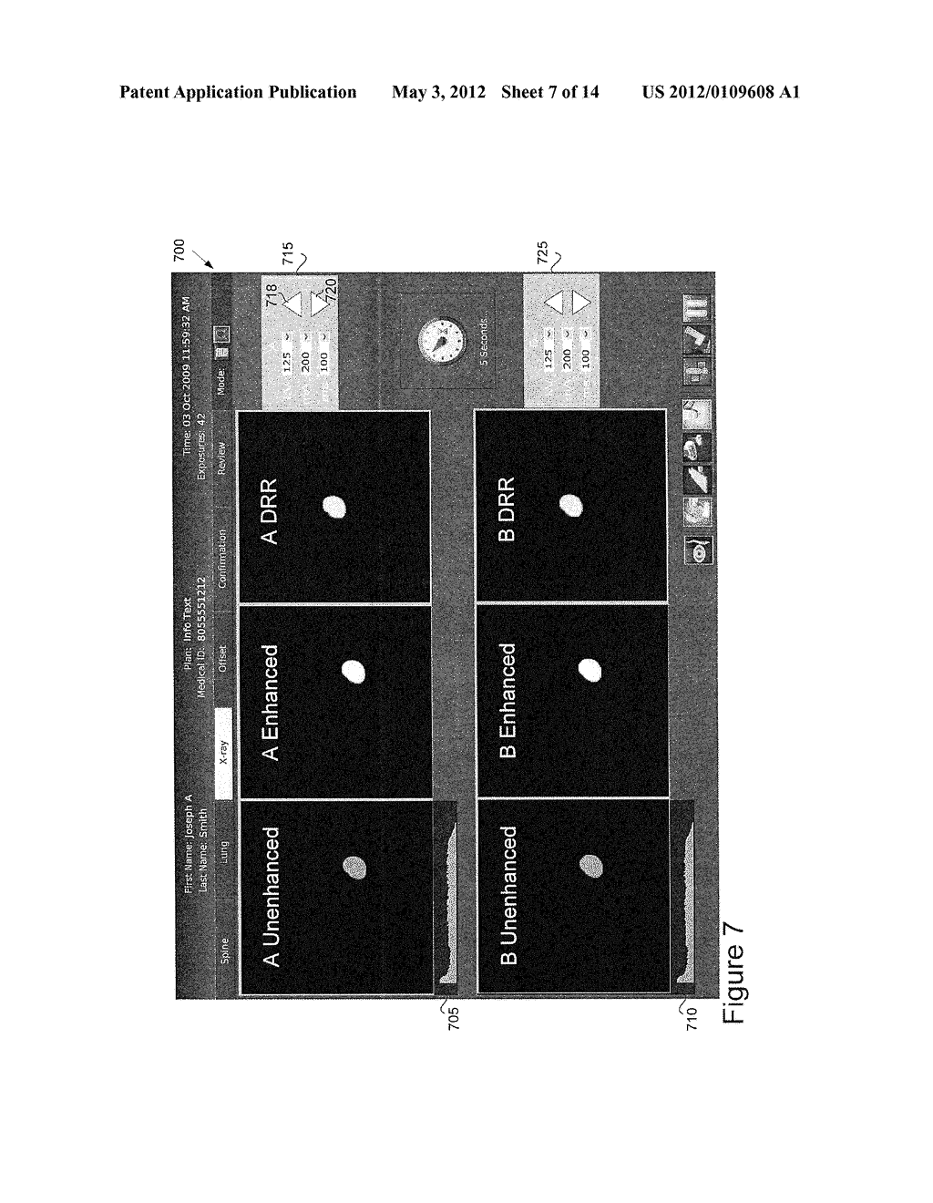 METHOD AND APPARATUS FOR SELECTING A TRACKING METHOD TO USE IN IMAGE     GUIDED TREATMENT - diagram, schematic, and image 08