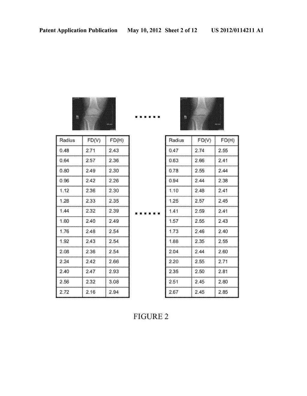 Systems and Methods for Generating an Osteoarthritis Progression Predictor     and Systems and Methods for Using the Predictor - diagram, schematic, and image 03