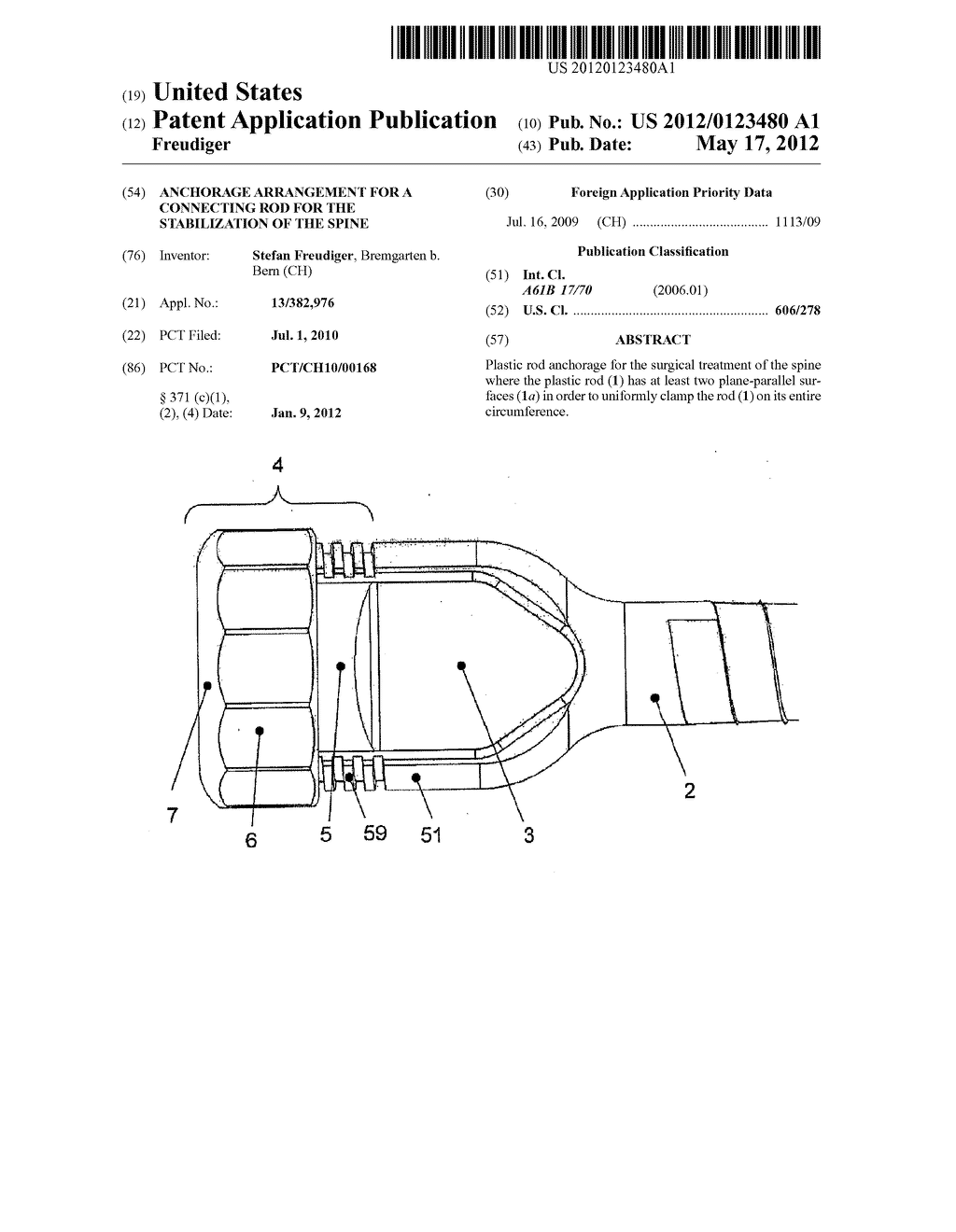 ANCHORAGE ARRANGEMENT FOR A CONNECTING ROD FOR THE STABILIZATION OF THE     SPINE - diagram, schematic, and image 01