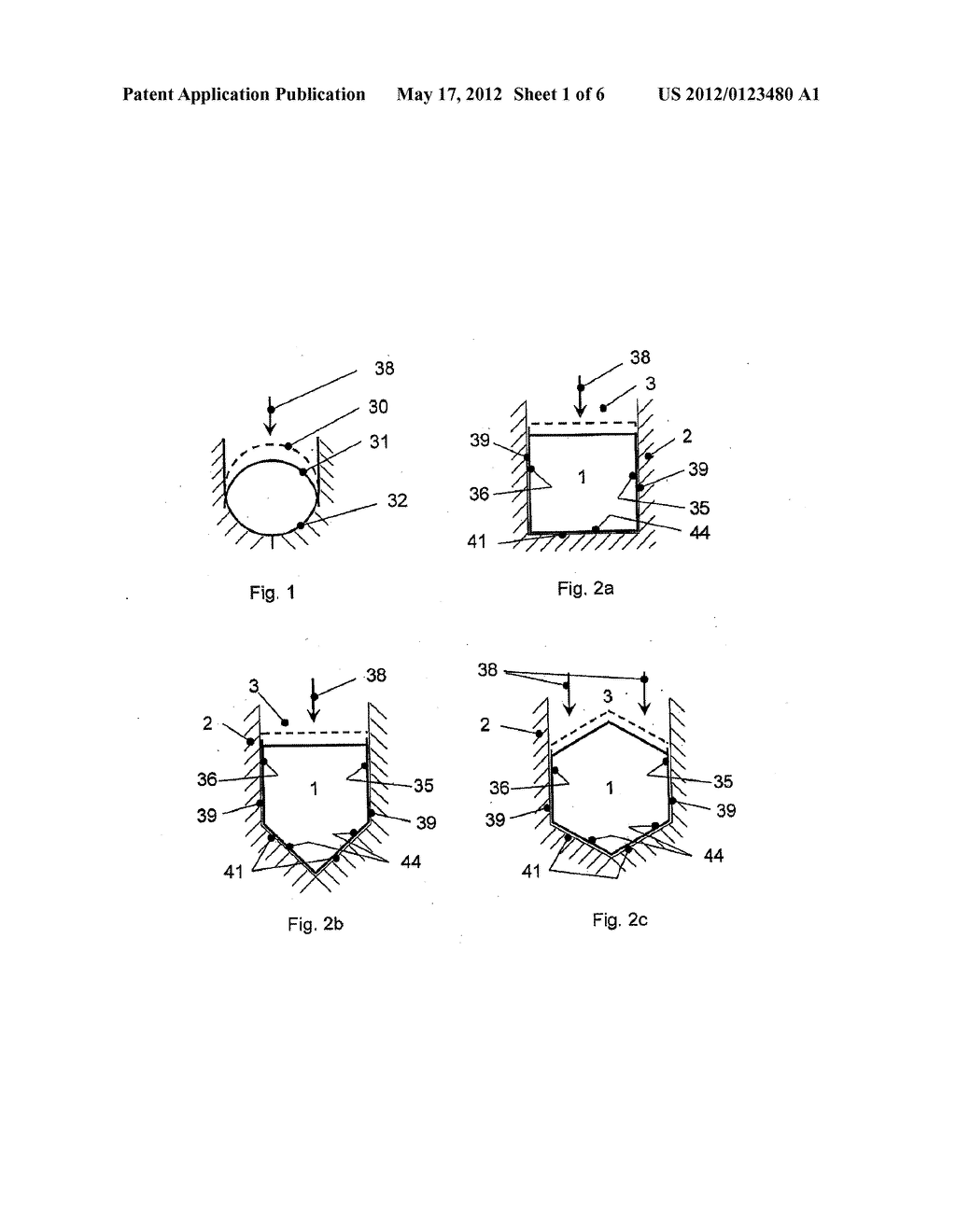 ANCHORAGE ARRANGEMENT FOR A CONNECTING ROD FOR THE STABILIZATION OF THE     SPINE - diagram, schematic, and image 02