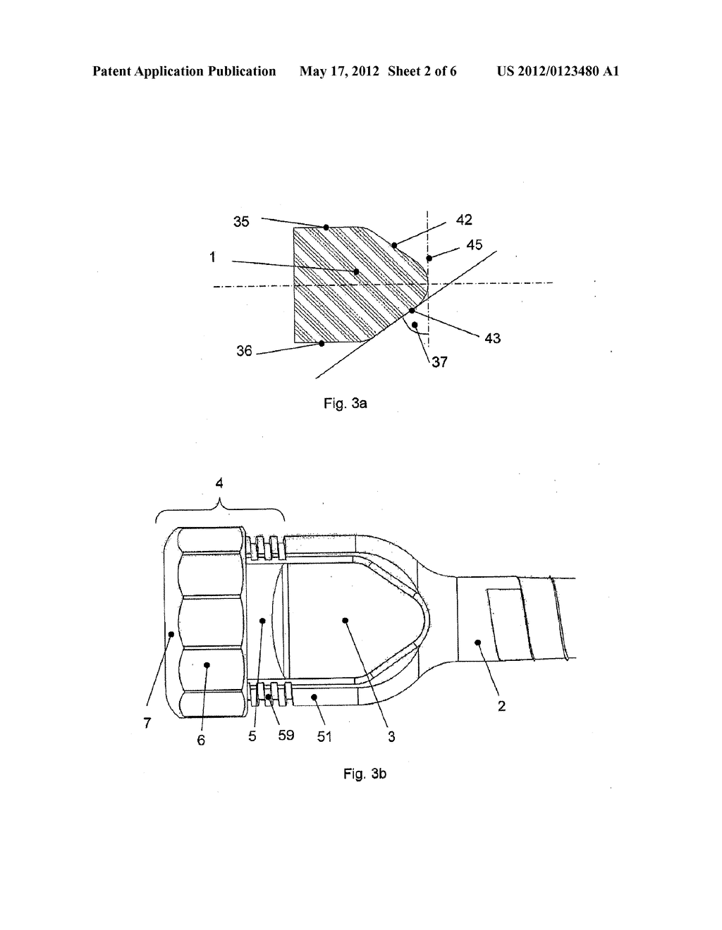 ANCHORAGE ARRANGEMENT FOR A CONNECTING ROD FOR THE STABILIZATION OF THE     SPINE - diagram, schematic, and image 03