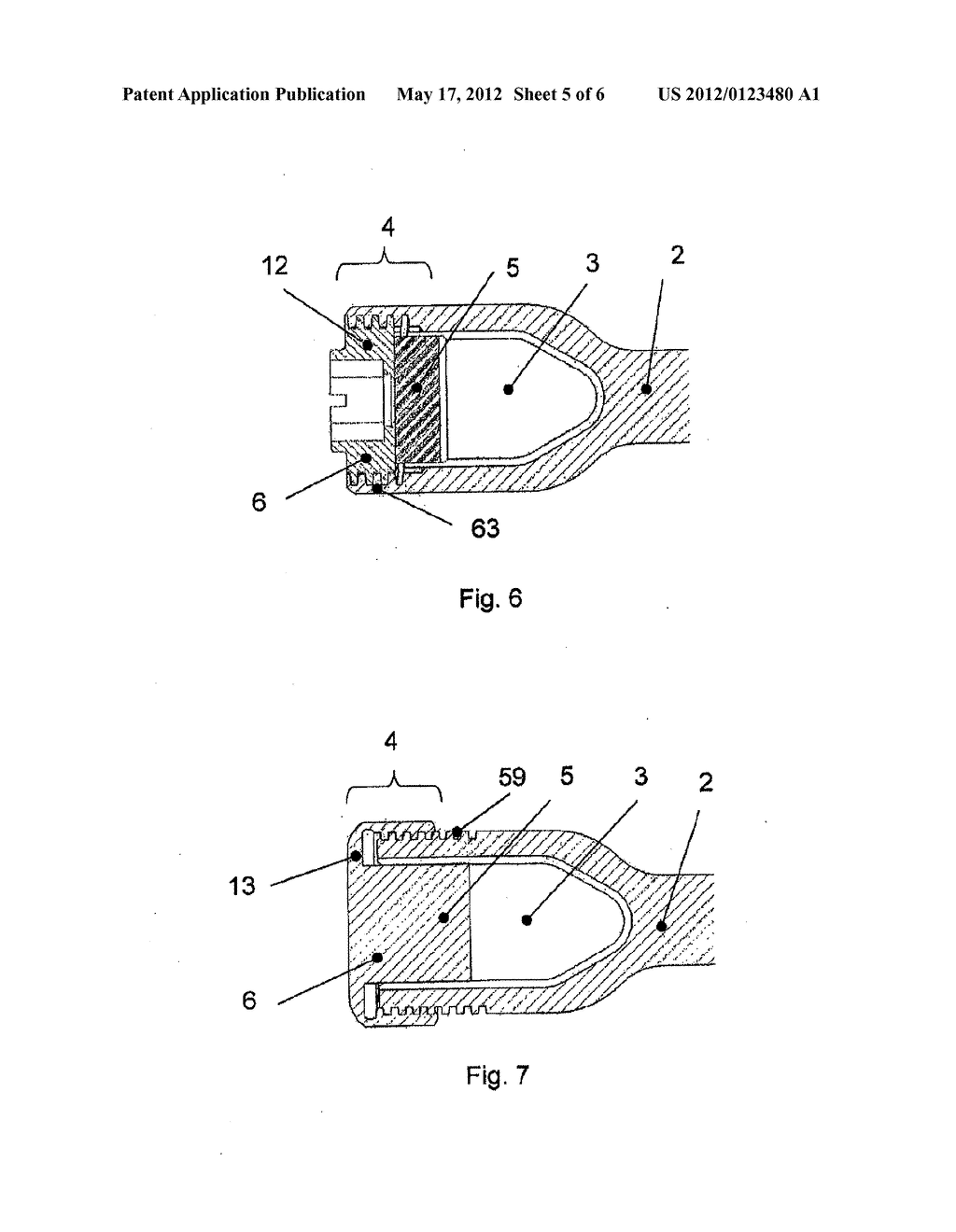 ANCHORAGE ARRANGEMENT FOR A CONNECTING ROD FOR THE STABILIZATION OF THE     SPINE - diagram, schematic, and image 06