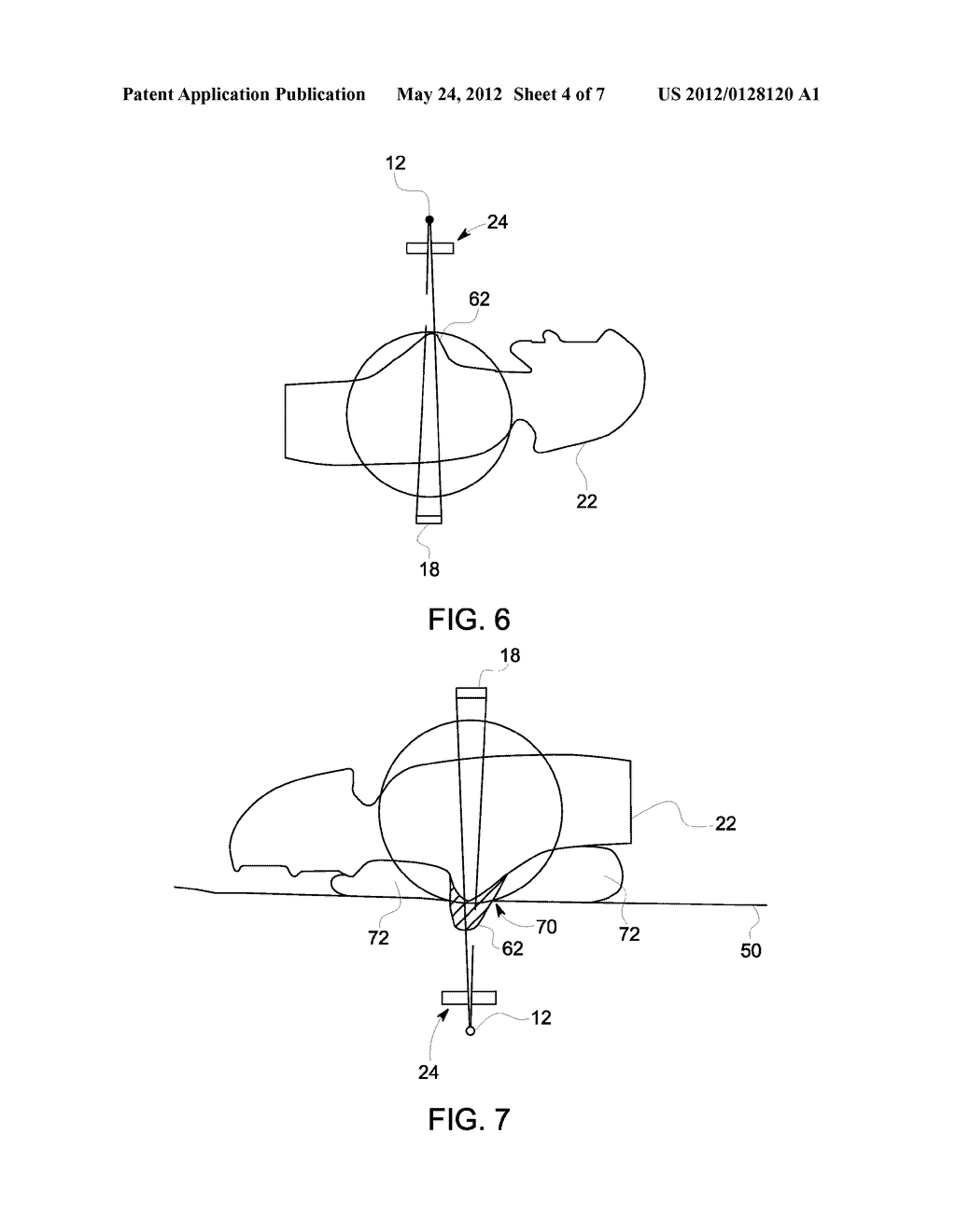 SYSTEM AND METHOD FOR BREAST IMAGING USING X-RAY COMPUTED TOMOGRAPHY - diagram, schematic, and image 05
