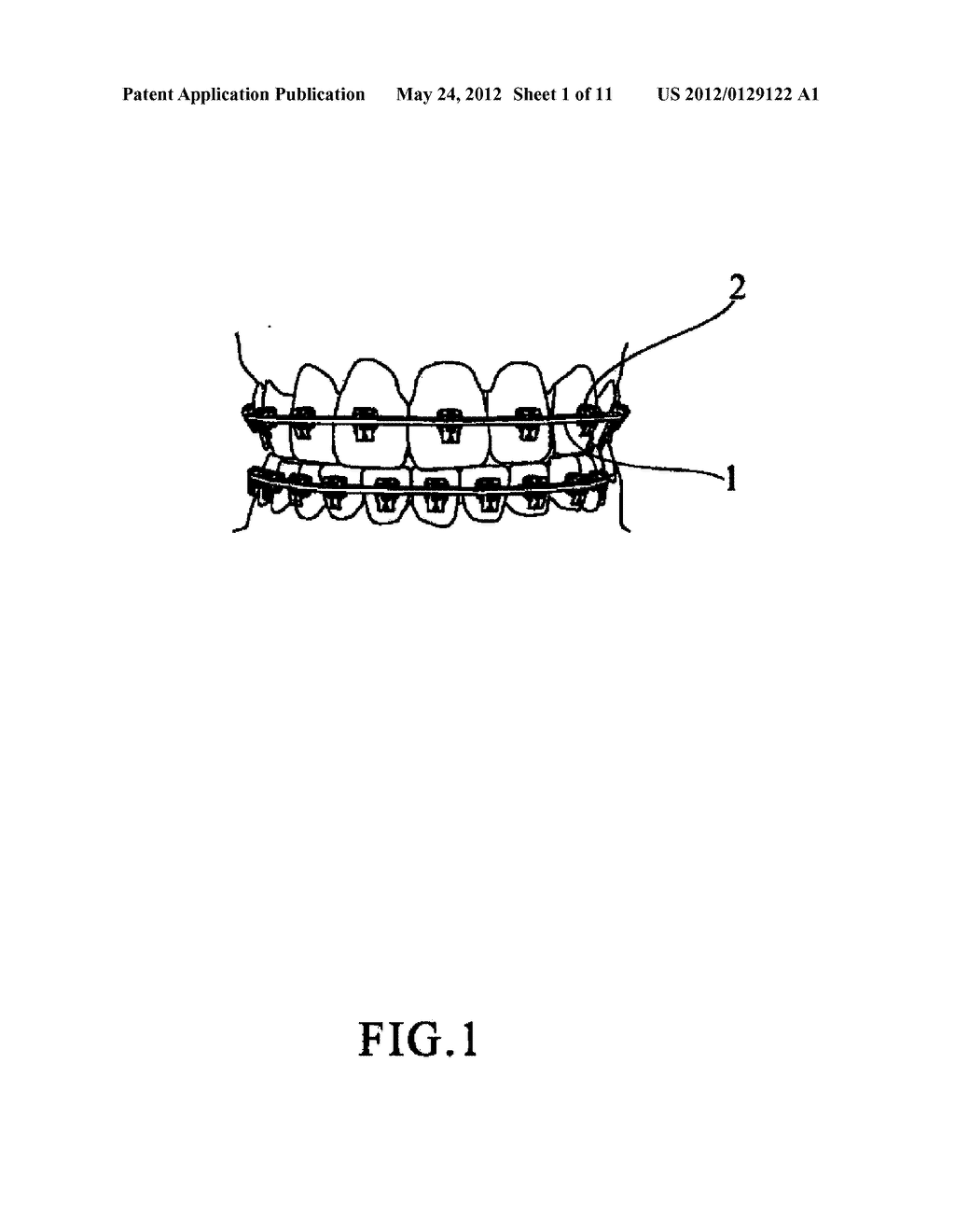Device for Orthodontic Arch and Brackets - diagram, schematic, and image 02