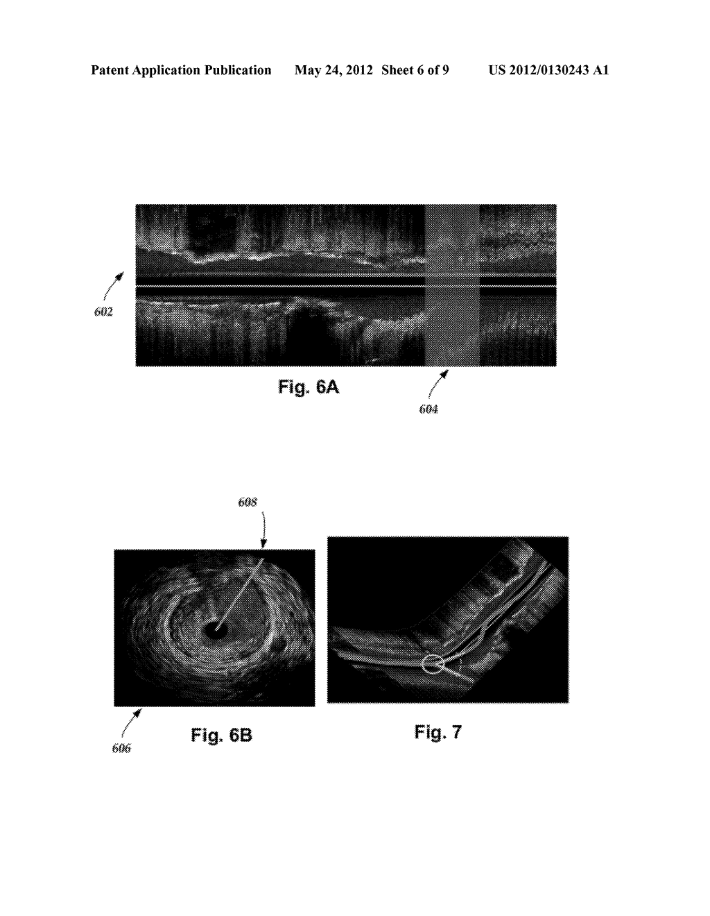 SYSTEMS AND METHODS FOR DETECTING AND DISPLAYING BODY LUMEN BIFURCATIONS - diagram, schematic, and image 07
