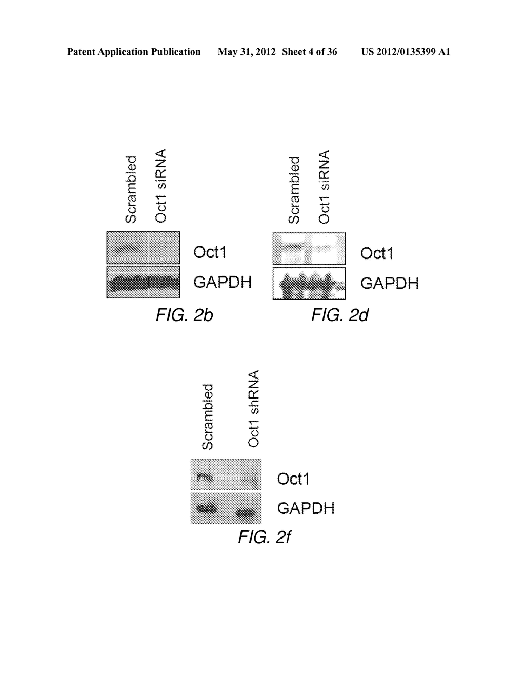 CANCER BIOMARKER AND METHODS OF USING THEREOF - diagram, schematic, and image 05