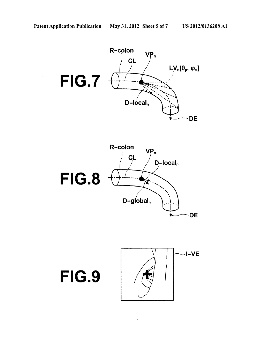 MEDICAL IMAGE PROCESSING APPARATUS METHOD AND PROGRAM - diagram, schematic, and image 06