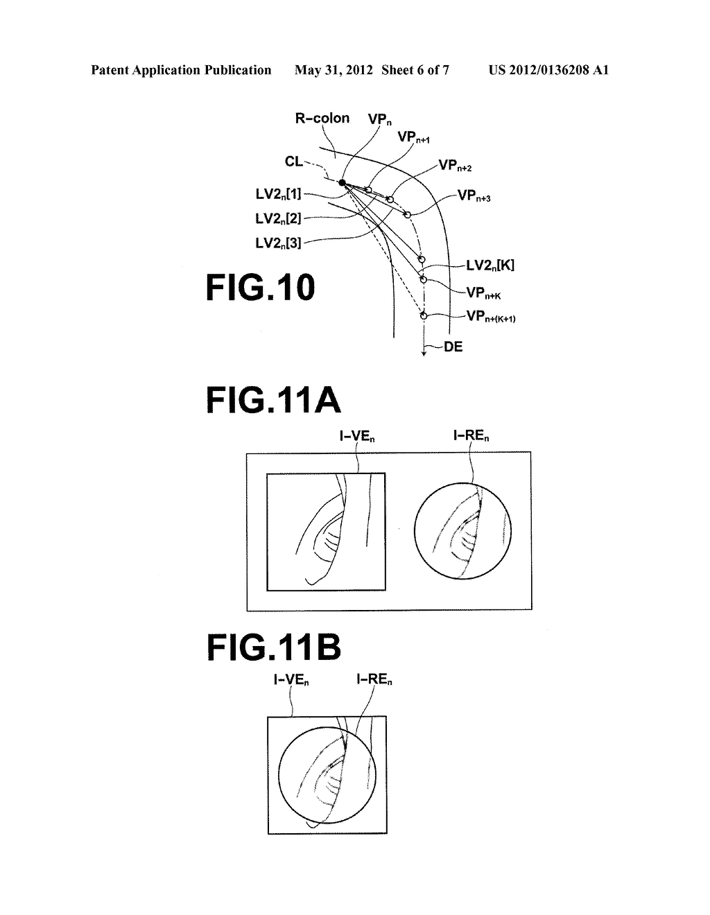 MEDICAL IMAGE PROCESSING APPARATUS METHOD AND PROGRAM - diagram, schematic, and image 07