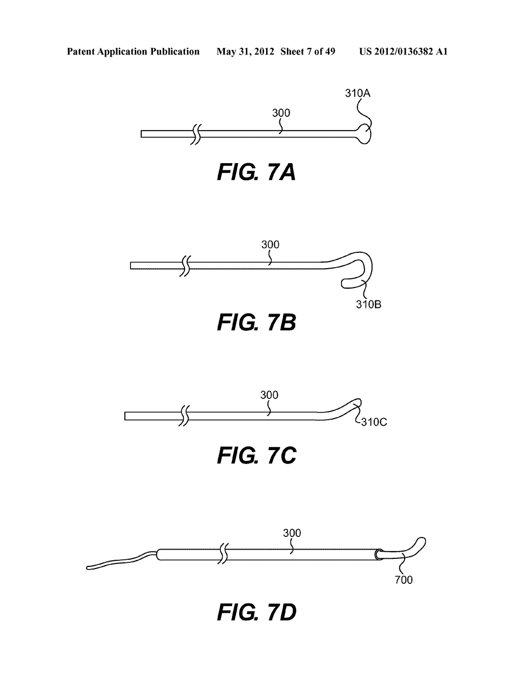 ENDOVASCULAR DEVICES AND METHODS FOR EXPLOITING INTRAMURAL SPACE - diagram, schematic, and image 08