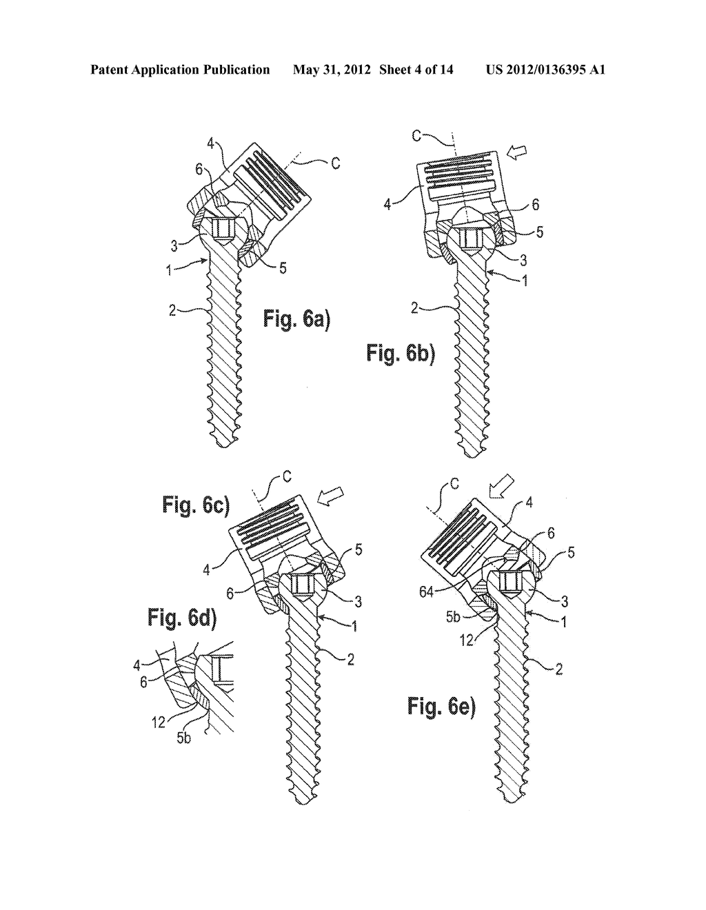 POLYAXIAL BONE ANCHORING DEVICE WITH ENLARGED PIVOT ANGLE - diagram, schematic, and image 05