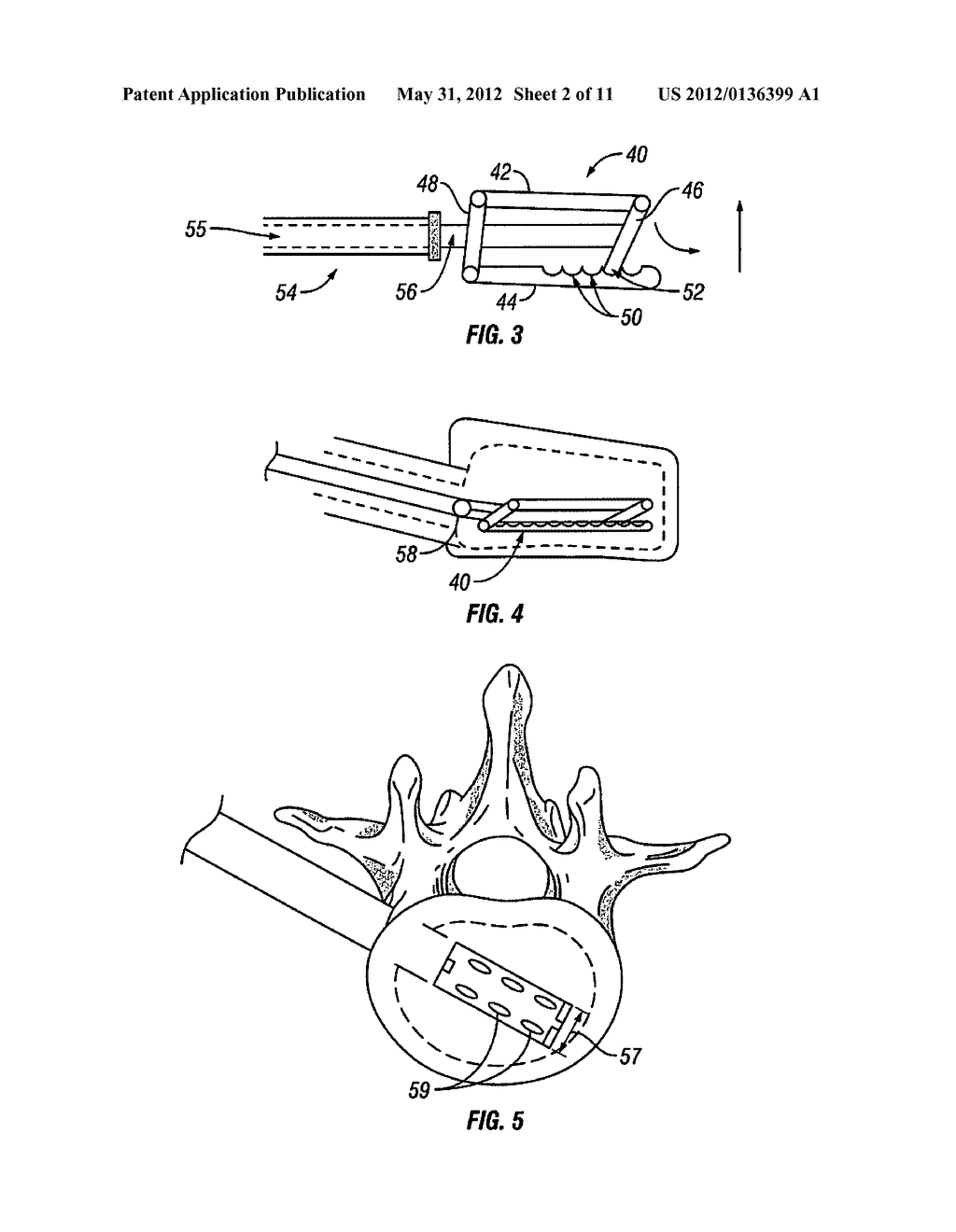 Devices and Methods For Treating Bone - diagram, schematic, and image 03