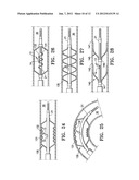 AGENT DELIVERY CATHETER HAVING A RADIALLY EXPANDABLE CENTERING SUPPORT     MEMBER diagram and image