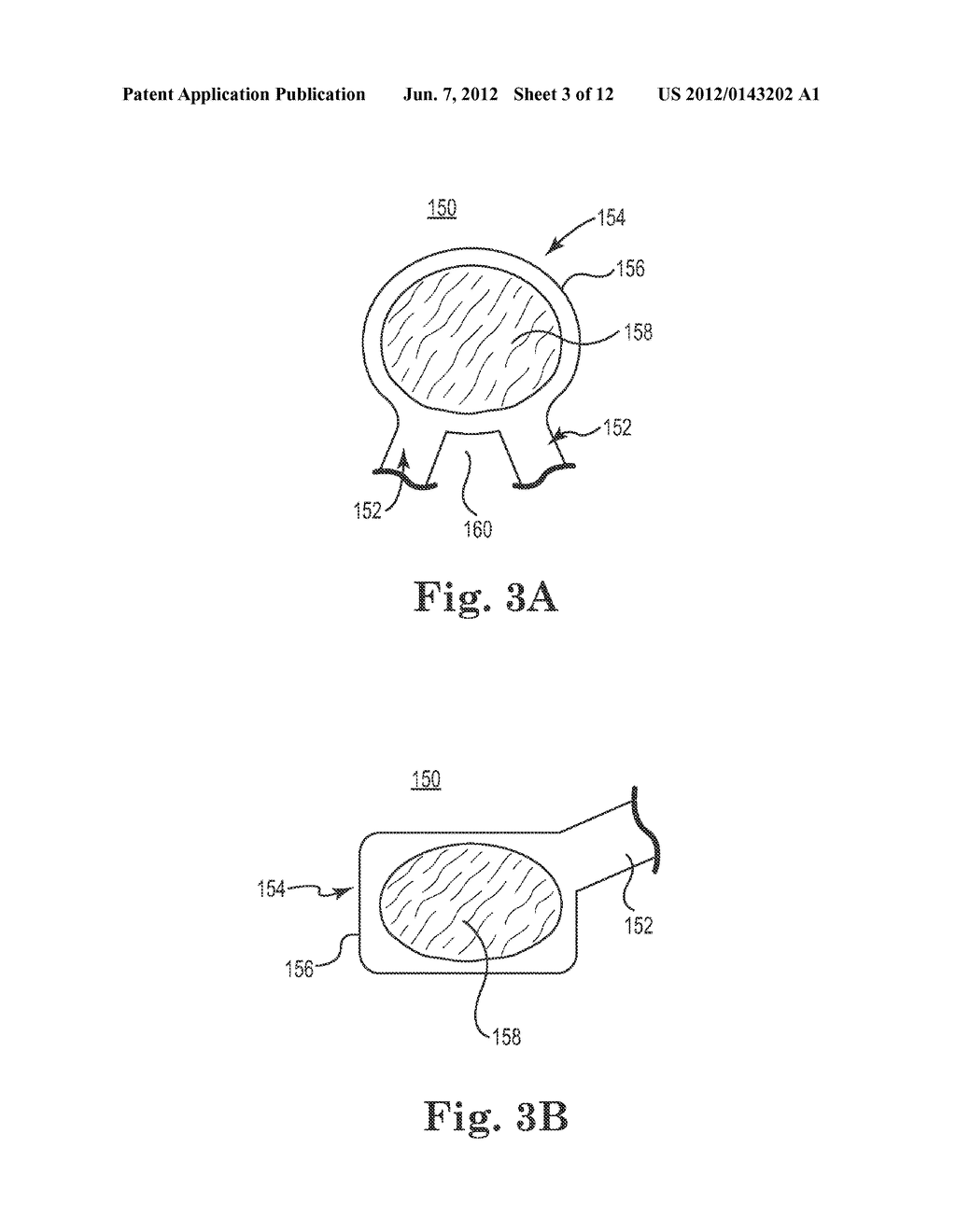 SYSTEMS AND METHODS FOR FORMING A CAVITY IN, AND DELIVERING CURABLE     MATERIAL INTO, BONE - diagram, schematic, and image 04