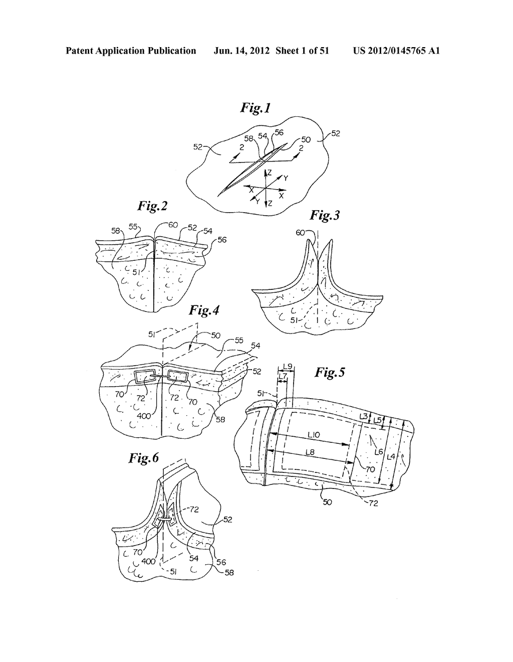 MECHANICAL METHOD AND APPARATUS FOR BILATERAL TISSUE FASTENING - diagram, schematic, and image 02