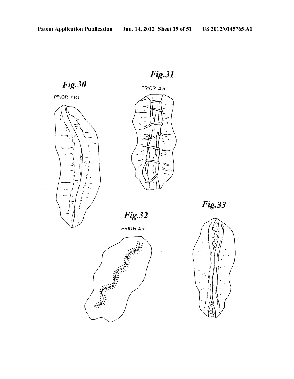 MECHANICAL METHOD AND APPARATUS FOR BILATERAL TISSUE FASTENING - diagram, schematic, and image 20