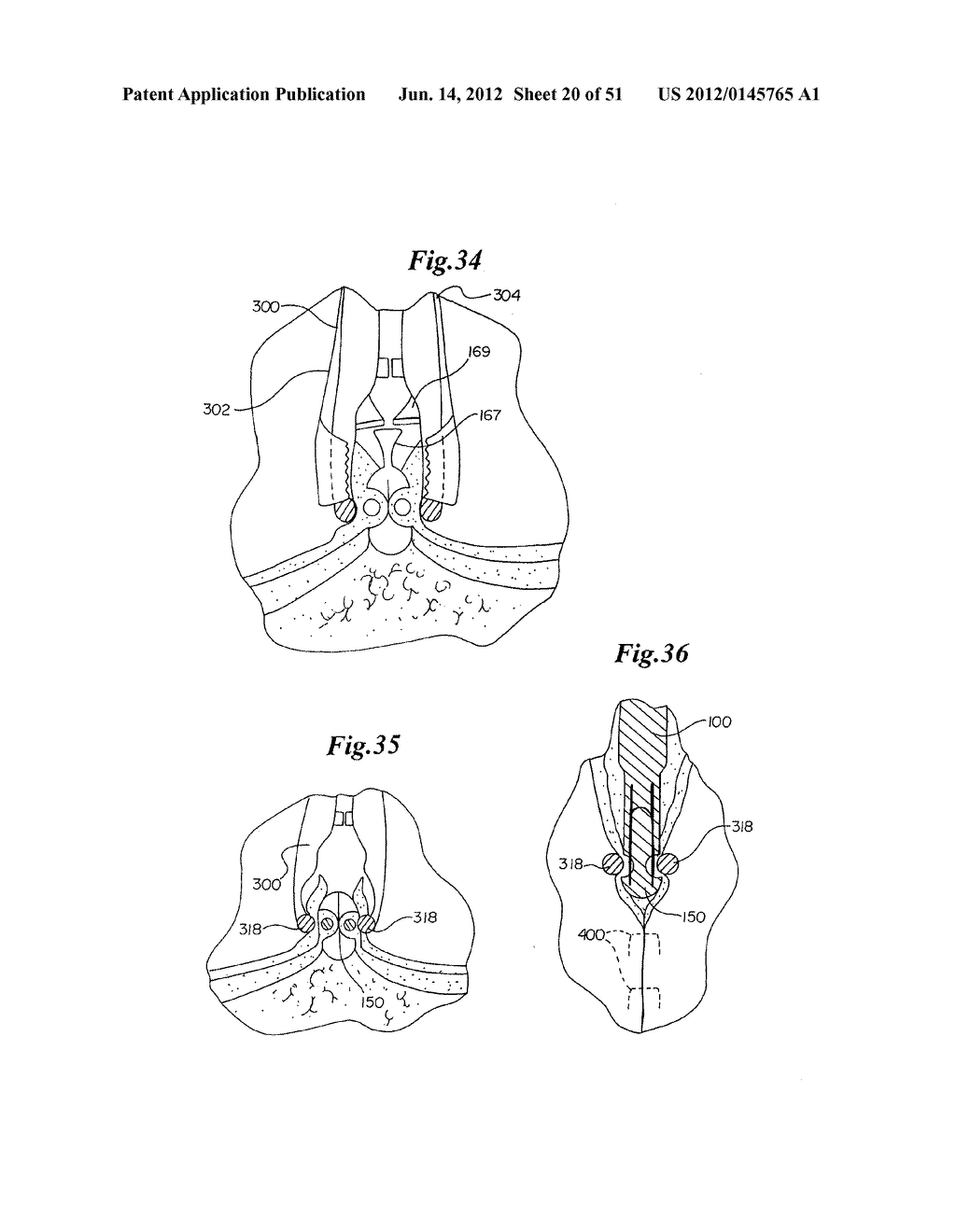 MECHANICAL METHOD AND APPARATUS FOR BILATERAL TISSUE FASTENING - diagram, schematic, and image 21
