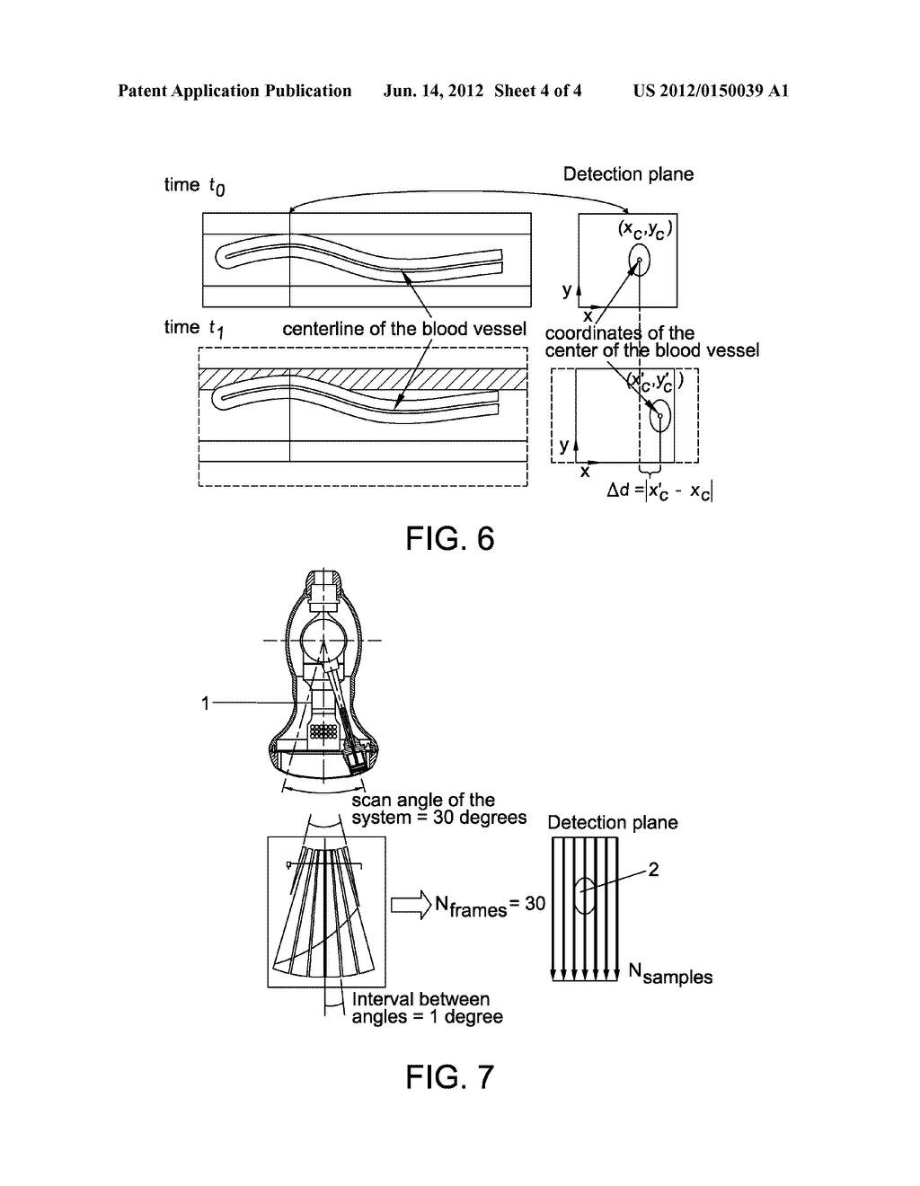 ULTRASOUND VOLUME PROBE NAVIGATION AND CONTROL METHOD AND DEVICE - diagram, schematic, and image 05