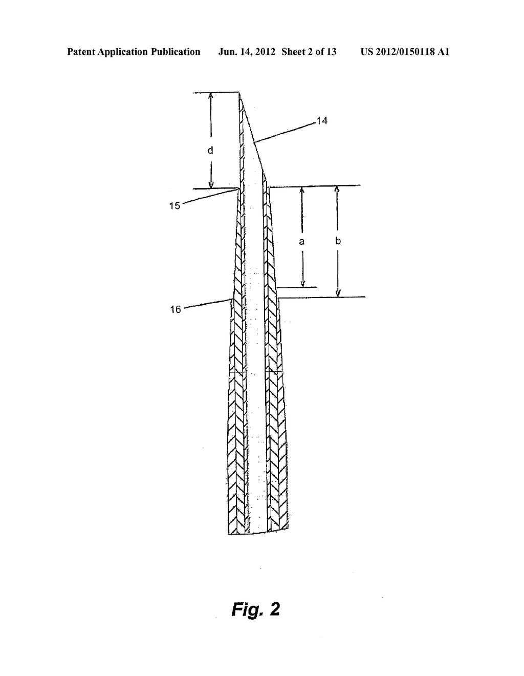 Apparatus for Peripheral Vascular Access - diagram, schematic, and image 03