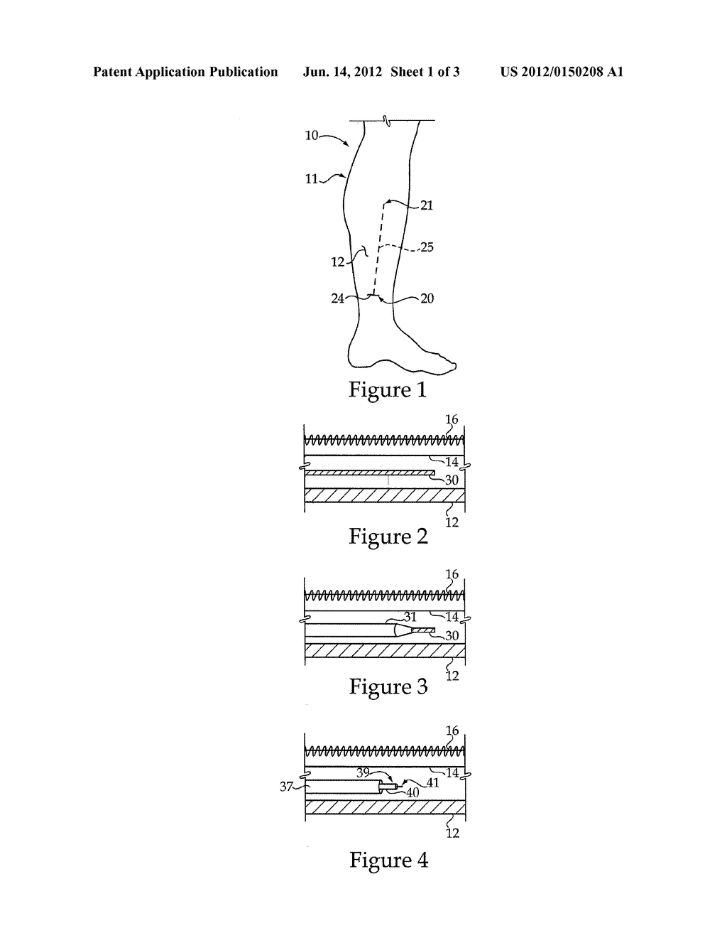 Compartment Syndrome Treatment Method And Surgical Instrument For Same - diagram, schematic, and image 02