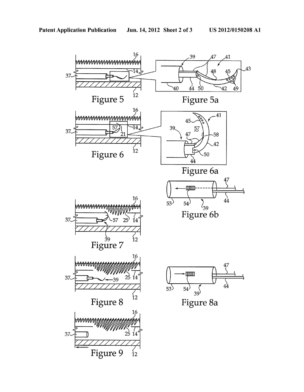 Compartment Syndrome Treatment Method And Surgical Instrument For Same - diagram, schematic, and image 03