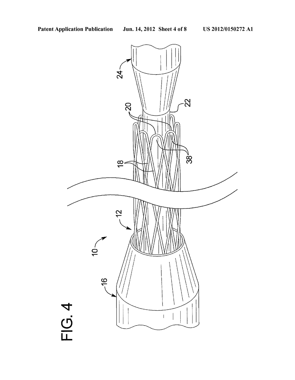 IMPLANT DEPLOYMENT RESTRAINT DEVICE - diagram, schematic, and image 05