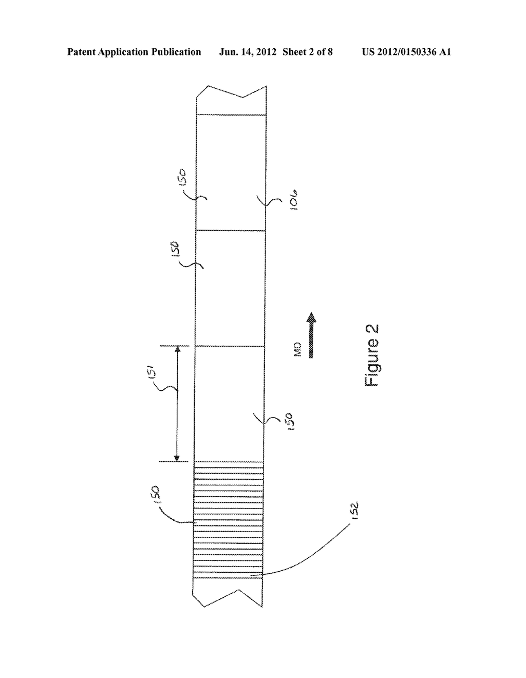 Systems and Methods for Detecting and Rejecting Defective Absorbent     Articles from A Converting Line - diagram, schematic, and image 03