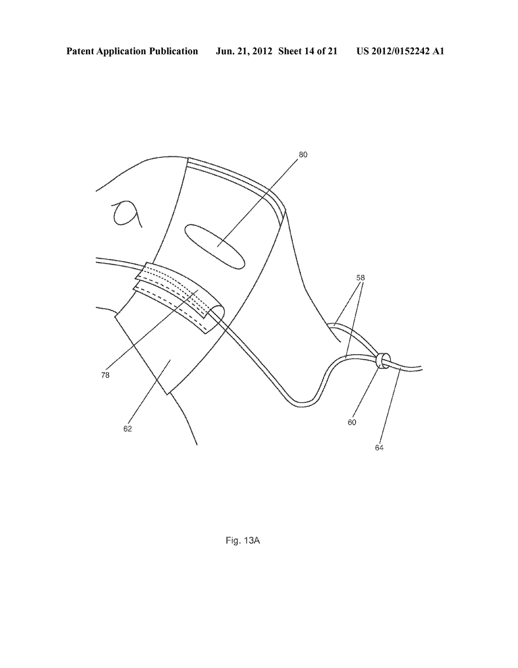 METHOD AND APPARATUS FOR PORTABLE FLUID DELIVERY FOR ANIMALS - diagram, schematic, and image 15