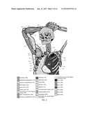 CT Atlas of Musculoskeletal Anatomy to Guide Treatment of Sarcoma diagram and image